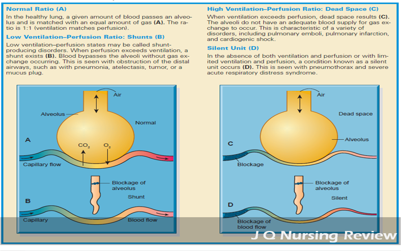 Ventilation Perfusion Ratio : Jq nursing review a p lecture ventilation perfusion