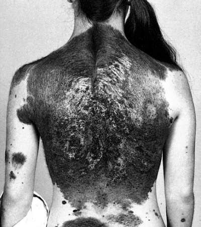Giant hairy congenital melanocytic nevus in a young girl with signs of neurocutaneous melanosis