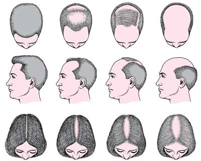 Tetralysal Lymecycline Hair Loss Suggestions To Overcome