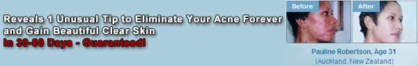 Eliminate Your Acne Forever and Gain Beautiful Clear Skin