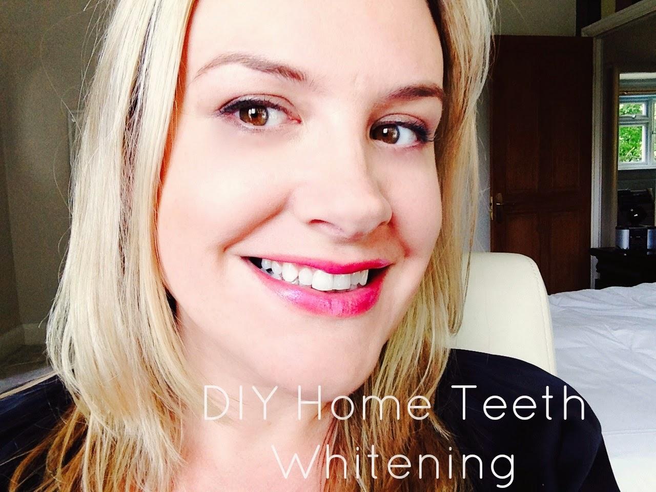 DIY-Home-whiteneing-Teeth-UK-How-To