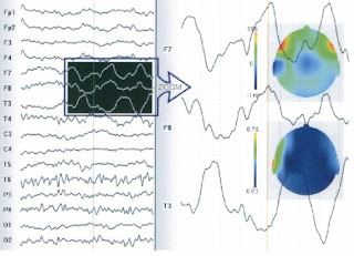 EEG changes with cellular phone radiation