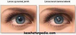 Cara mencegah mata katarak