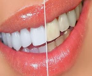 Cara Cepat Dan Alami Memutihkan Gigi Yang Kuning Goceng Junior