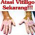 Cara Mengatasi Vitiligo Secara Alami Dan Aman