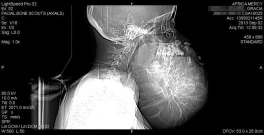rontgen tumor selesai   liataja.com