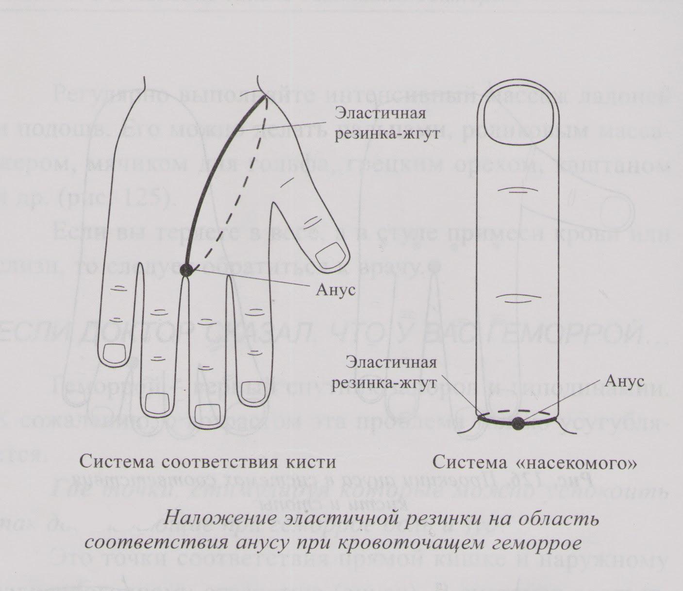 надрыв слизистой прямой кишки