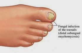 remedios caseros hongos en las uñas pies