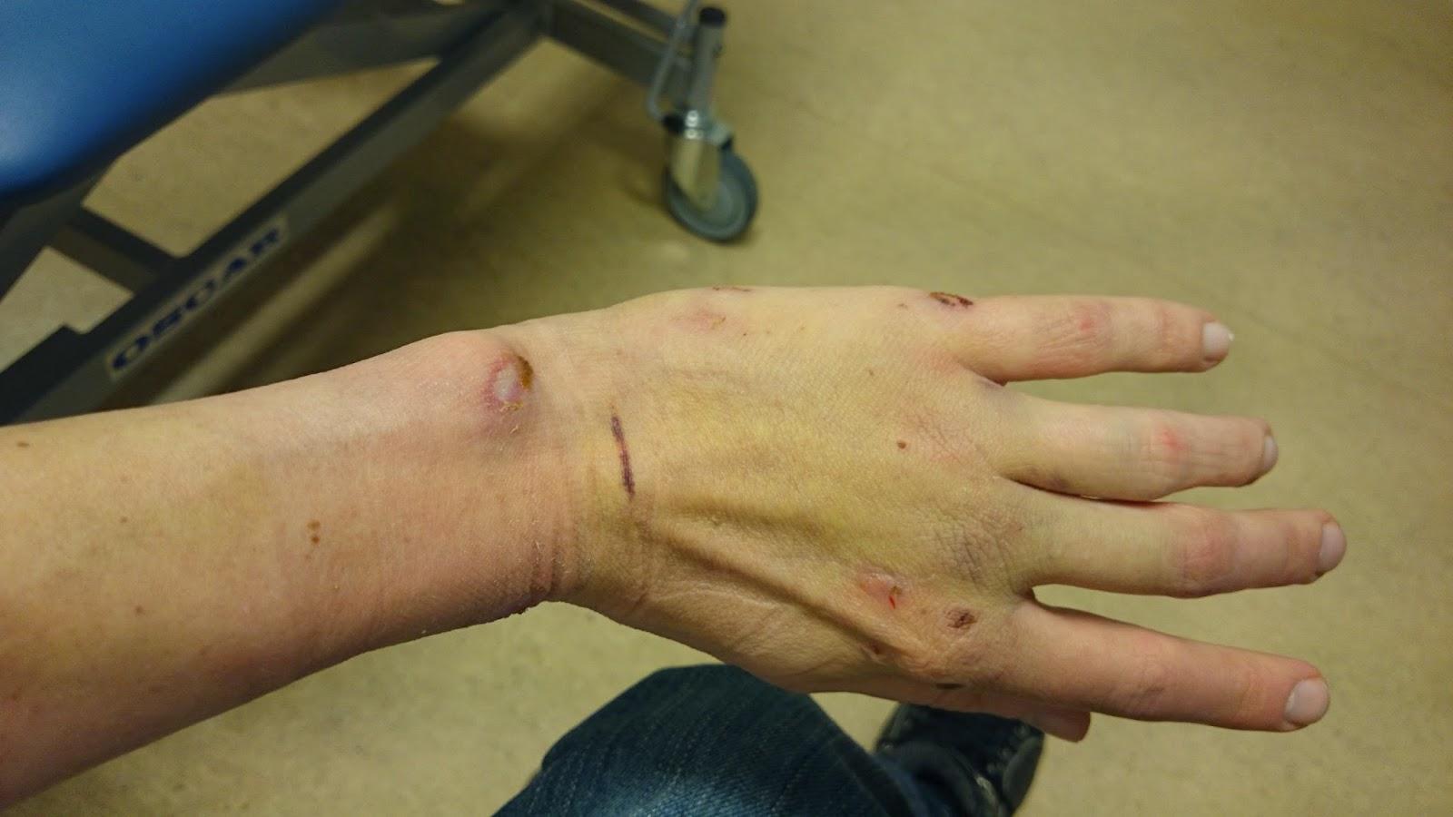 varför får man blåmärken utan anledning