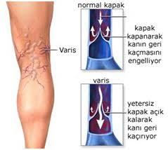 Varis hastalığı