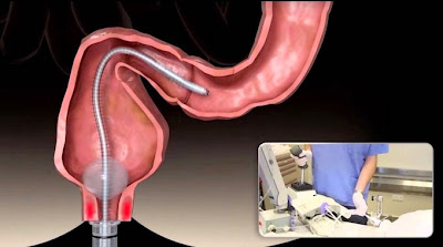 http://www.obatkankerusus.web.id/2015/05/pendeteksian-kanker-usus-besar.html