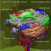 3d Brain4
