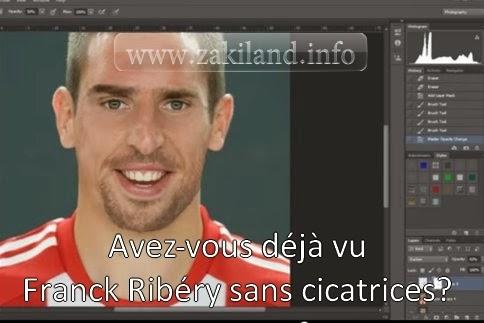 Avez-vous déjà vu Franck Ribéry sans cicatrices?