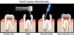 http://www.dentist-salem-india.com/specialty-treatments-root-canal-treatment.php