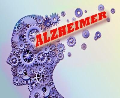 Empat Cara Mudah Bantu Cegah Alzheimer