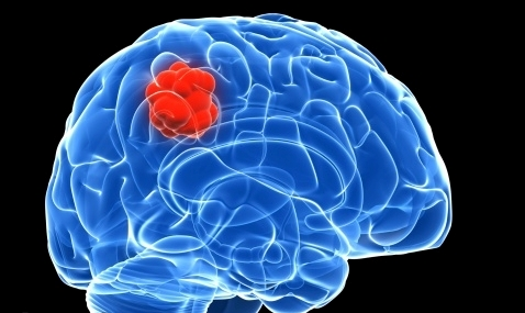 The symptoms of patients with brain cancer
