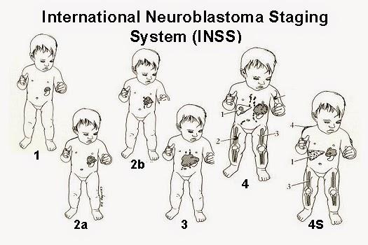 Neuroblastoma adalah kanker sistem saraf pada anak