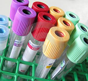 Exames de sangue laboratoriais