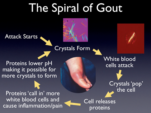 juice recipe to lower uric acid gout in ankle home remedies young living essential oil for gout pain