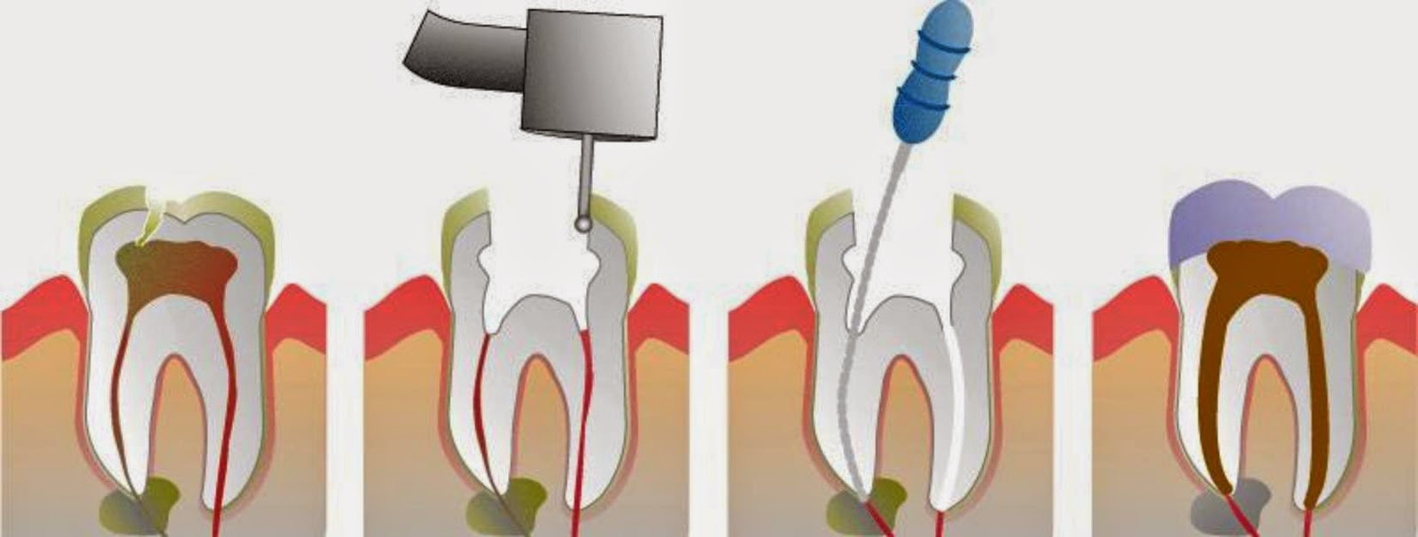 steps in root canal tratment The root canal system is located in the roots of each of your teeth if it becomes infected, you may need root canal treatment to remove the bacteria and save the tooth.