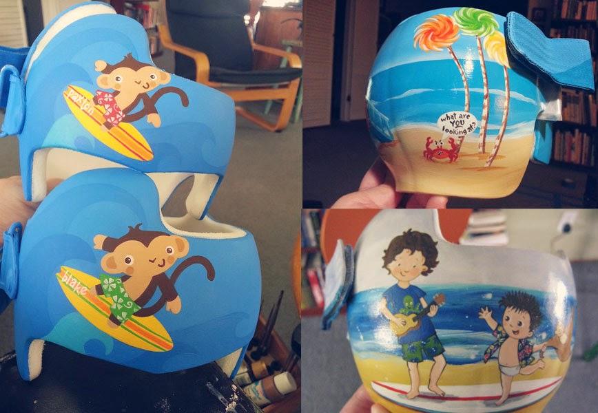 Paula's Corrective Helmet Designs