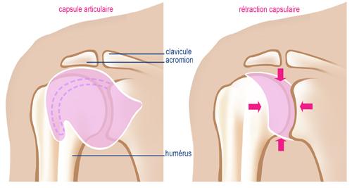 La douleur du plus large muscle du dos