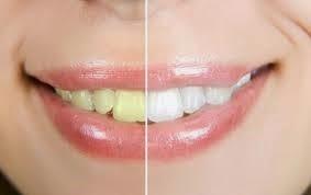 Cara Memutihkan Gigi Dengan Pemutih Alami