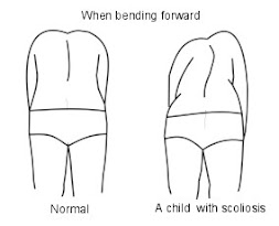 Bending Forward Scoliosis
