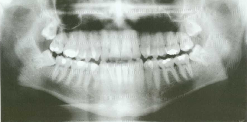 Extraction of Partially-erupted mesio-angular lower third molar