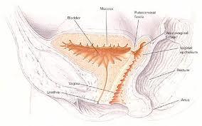 Fistula vezico-vaginala