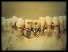 اول عمليه جراحة تعوضيه في تاريخ طب الأسنان