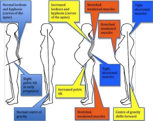 Bump, Baby C & Me : Pregnancy Pains- Pelvic Girdle Pain