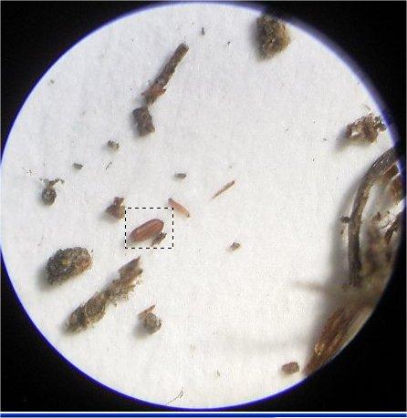 Cotyledon tomentosa ssp. ladismithiensis seed under microscope