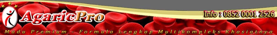 Cara Mengobati Penyempitan Pembuluh Darah Paling Aman dan Ampuh dengan Herbal