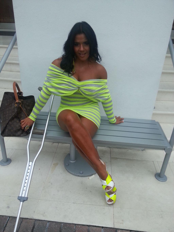 Fotos de Maripily Rivera en muletas luego de accidente.