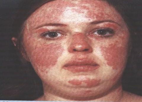 lupus eritematoso tratamiento: