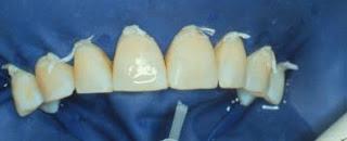 Aislación absoluta en blanqueamiento dental