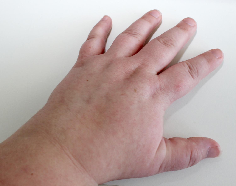 svullna händer och fötter gravid