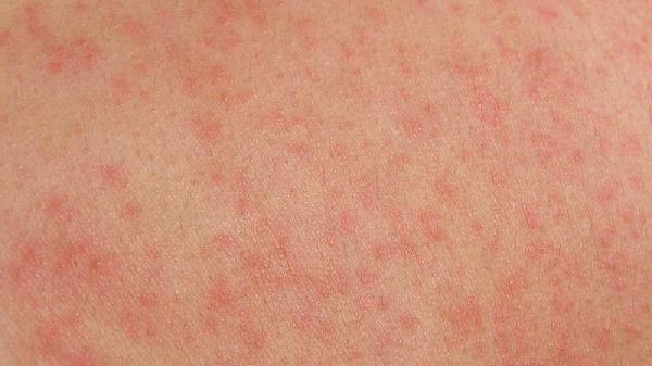 Skin rashes