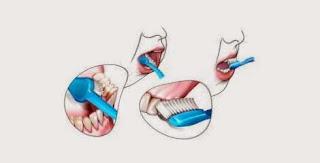 jelaskan tips bagaimana cara menggosok gigi yang benar dan baik pada anak menurut kesehatan who dokter gigi depkes beserta gambarnya sikat menyikat behel bersih