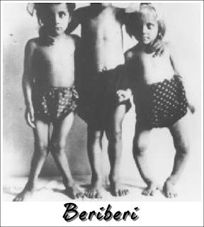 Beriberi adalah malnutrisi akibat kekurangan vitamin B
