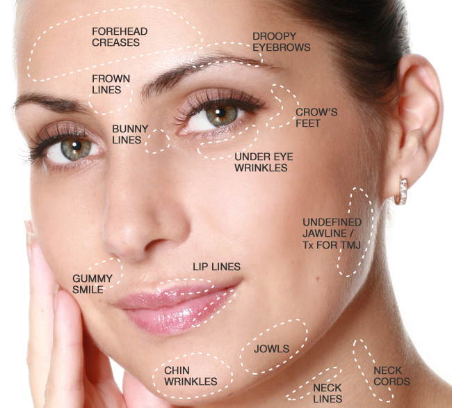 The skinny on botox and bruising skn bar my friend had botox done and she had huge bruises all over her eyes she totally went to the wrong place and i solutioingenieria Image collections