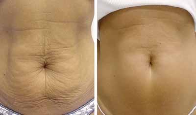 bajar de peso en una semana con dieta