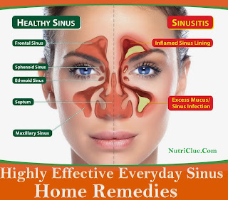 Highly Effective Everyday Sinus Home Remedies