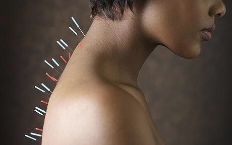 Acupuncture's benefits