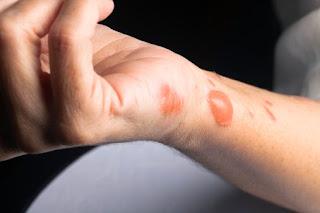 Obat luka kulit melepuh untuk anak