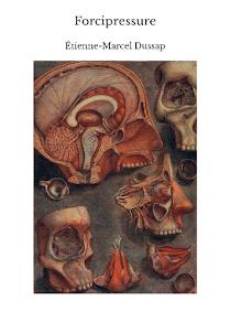 Forcipressure, par Étienne-Marcel Dussap