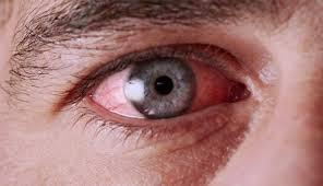 Cara mengatasi mata berair dan belekan