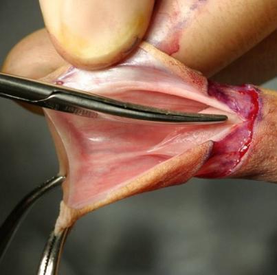 Klitoris Kitzler - Onmedade