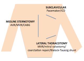 scars from cardiac surgery